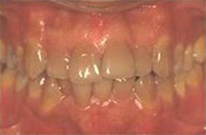 blanchiment-ambulatoire-5