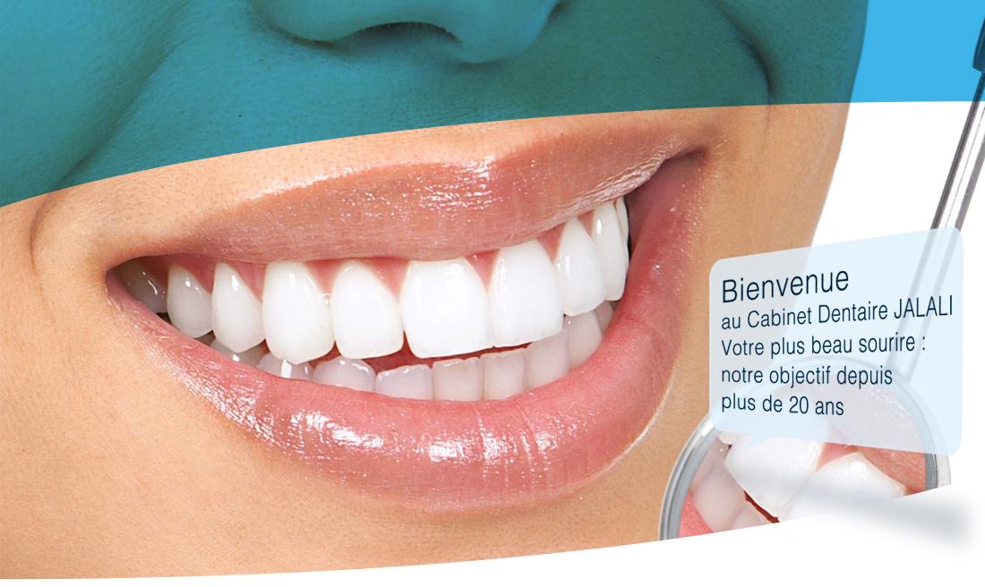 d84b577f3ef13a Facette et couronne en céramique dentaire - Cabinet dentaire Jalali